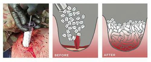 nasiakajace gabki do tamowania ciezkiego krwawienia